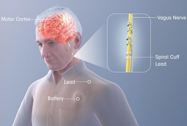 Liệu pháp mới có thể tăng gấp đôi tỷ lệ phục hồi cho bệnh nhân Đột quỵ