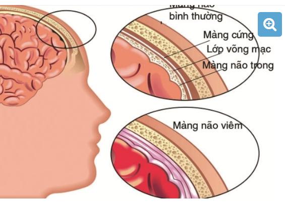 Phục Hồi Chức Năng Cho Trẻ Bị Di Chứng Viêm Não